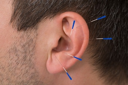35462734 - close-up of acupuncture needles on man's ear