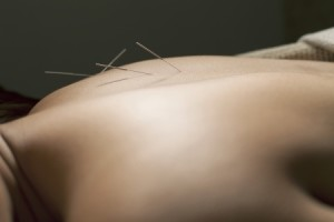 needles for back pain