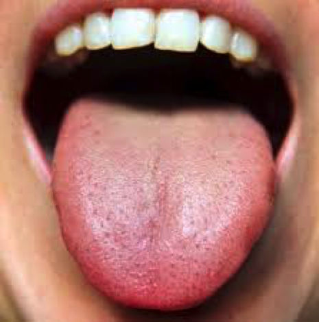 What Your Tongue Tells Us Selby Acupuncture